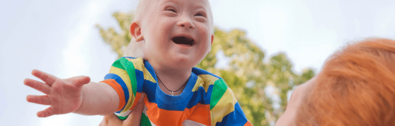 Down Syndrome child